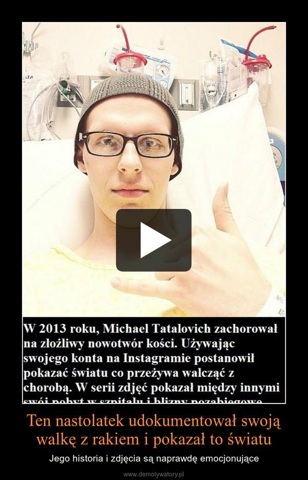 Ten nastolatek udokumentował swoją walkę z rakiem i pokazał to światu – Jego historia i zdjęcia są naprawdę emocjonujące