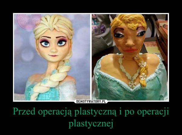 Przed operacją plastyczną i po operacji plastycznej –
