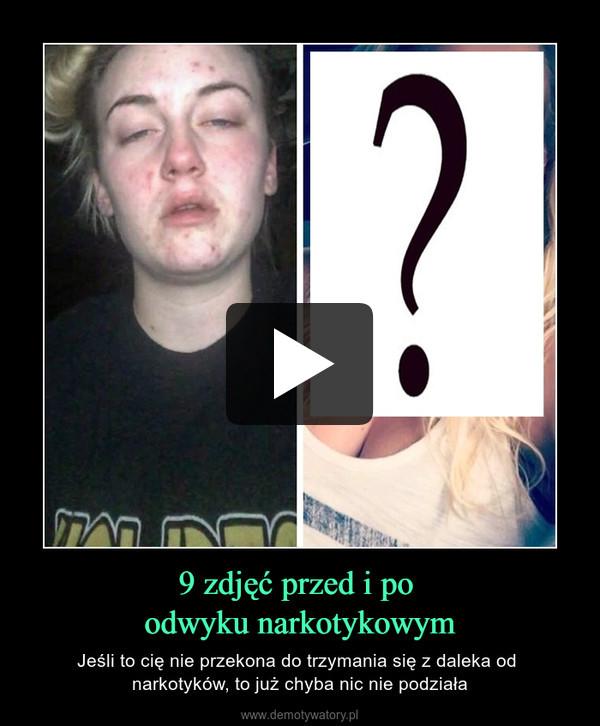 9 zdjęć przed i po odwyku narkotykowym – Jeśli to cię nie przekona do trzymania się z daleka od narkotyków, to już chyba nic nie podziała