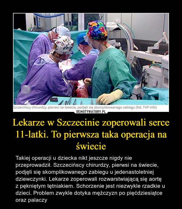 Lekarze w Szczecinie zoperowali serce 11-latki. To pierwsza taka operacja na świecie – Takiej operacji u dziecka nikt jeszcze nigdy nie przeprowadził. Szczecińscy chirurdzy, pierwsi na świecie, podjęli się skomplikowanego zabiegu u jedenastoletniej dziewczynki. Lekarze zoperowali rozwarstwiającą się aortę z pękniętym tętniakiem. Schorzenie jest niezwykle rzadkie u dzieci. Problem zwykle dotyka mężczyzn po pięćdziesiątce oraz palaczy