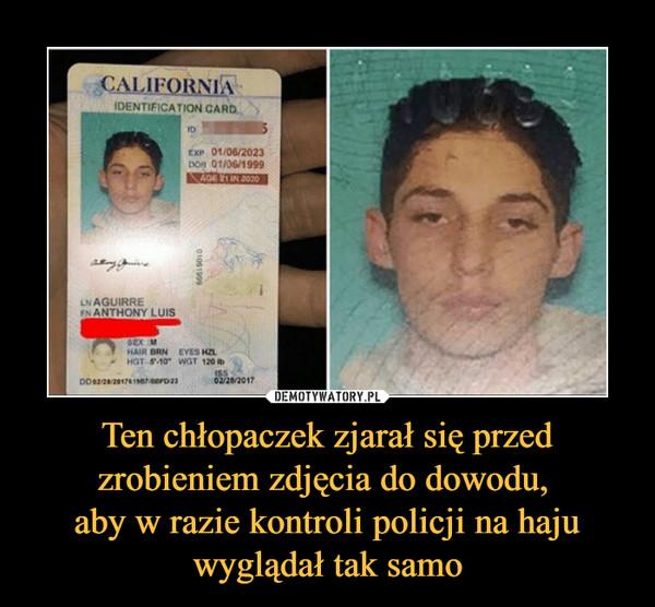 Ten chłopaczek zjarał się przed zrobieniem zdjęcia do dowodu, aby w razie kontroli policji na haju wyglądał tak samo –