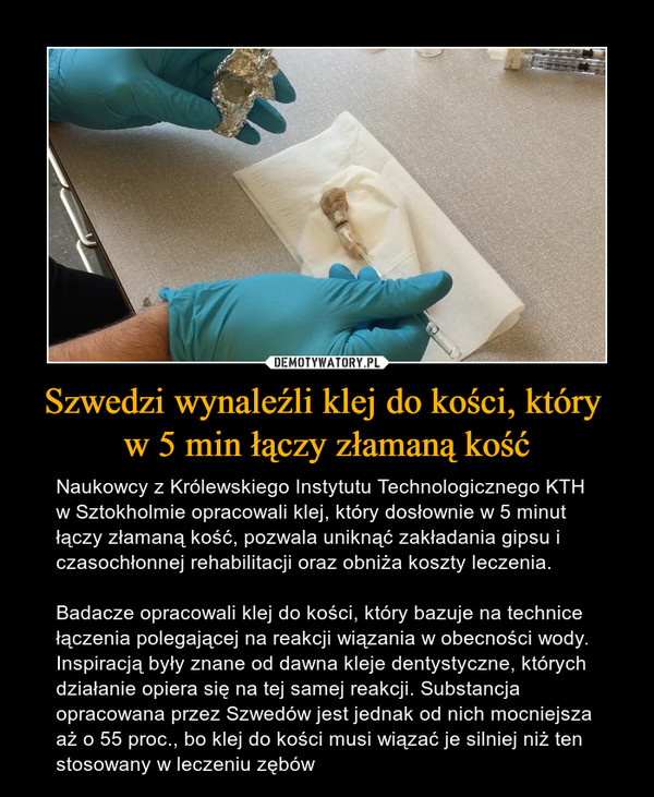 Szwedzi wynaleźli klej do kości, który w 5 min łączy złamaną kość – Naukowcy z Królewskiego Instytutu Technologicznego KTH w Sztokholmie opracowali klej, który dosłownie w 5 minut łączy złamaną kość, pozwala uniknąć zakładania gipsu i czasochłonnej rehabilitacji oraz obniża koszty leczenia.Badacze opracowali klej do kości, który bazuje na technice łączenia polegającej na reakcji wiązania w obecności wody. Inspiracją były znane od dawna kleje dentystyczne, których działanie opiera się na tej samej reakcji.Substancja opracowana przez Szwedów jest jednak od nich mocniejsza aż o 55 proc., bo klej do kości musi wiązać je silniej niż ten stosowany w leczeniu zębów