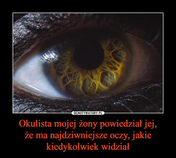 Okulista mojej żony powiedział jej,że ma najdziwniejsze oczy, jakie kiedykolwiek widział –