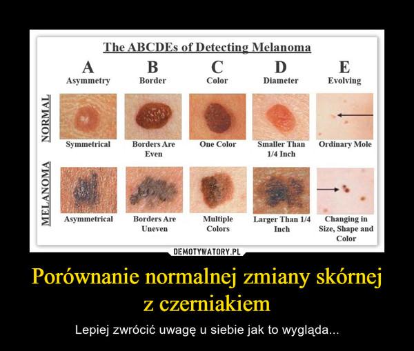 Porównanie normalnej zmiany skórnejz czerniakiem – Lepiej zwrócić uwagę u siebie jak to wygląda...
