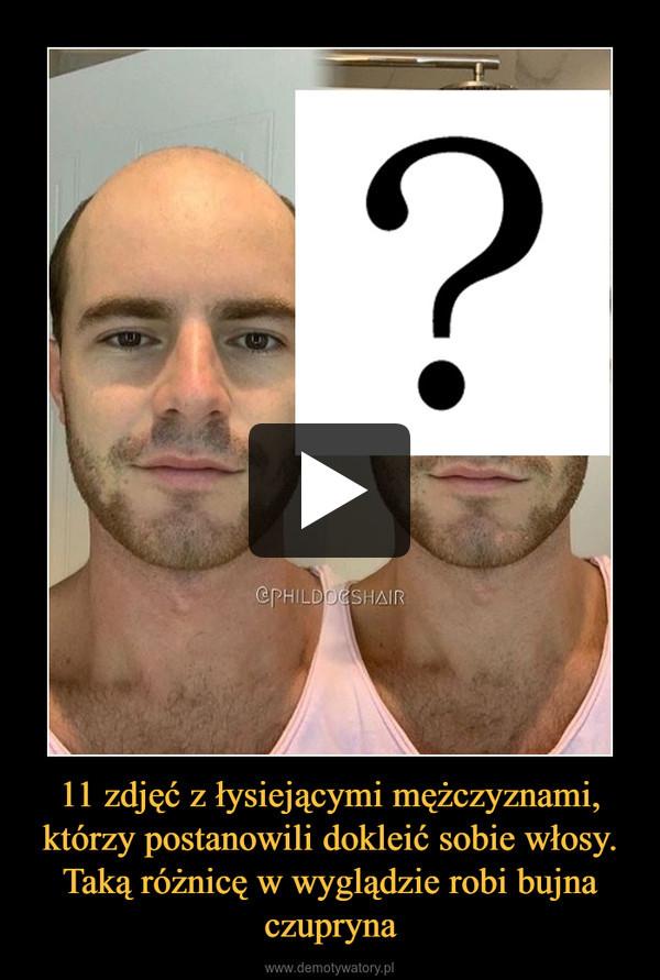 11 zdjęć z łysiejącymi mężczyznami, którzy postanowili dokleić sobie włosy. Taką różnicę w wyglądzie robi bujna czupryna –