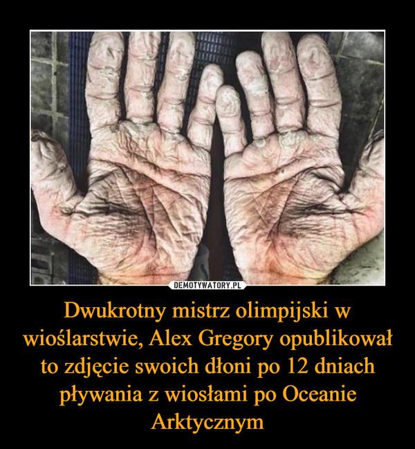Dwukrotny mistrz olimpijski w wioślarstwie, Alex Gregory opublikował to zdjęcie swoich dłoni po 12 dniach pływania z wiosłami po Oceanie Arktycznym –