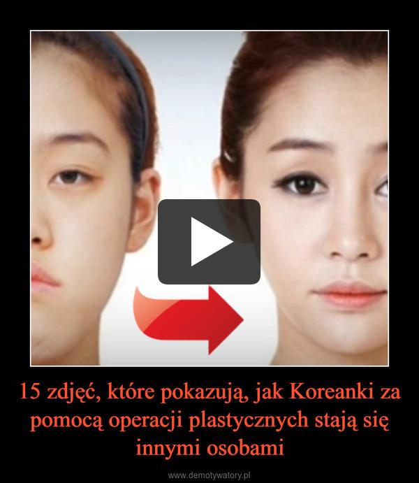 15 zdjęć, które pokazują, jak Koreanki za pomocą operacji plastycznych stają się innymi osobami –