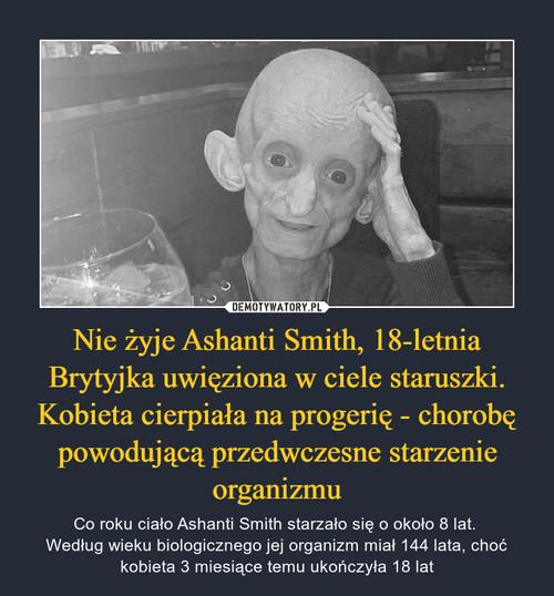 Nie żyje Ashanti Smith, 18-letnia Brytyjka uwięziona w ciele staruszki. Kobieta cierpiała na progerię - chorobę powodującą przedwczesne starzenie organizmu
